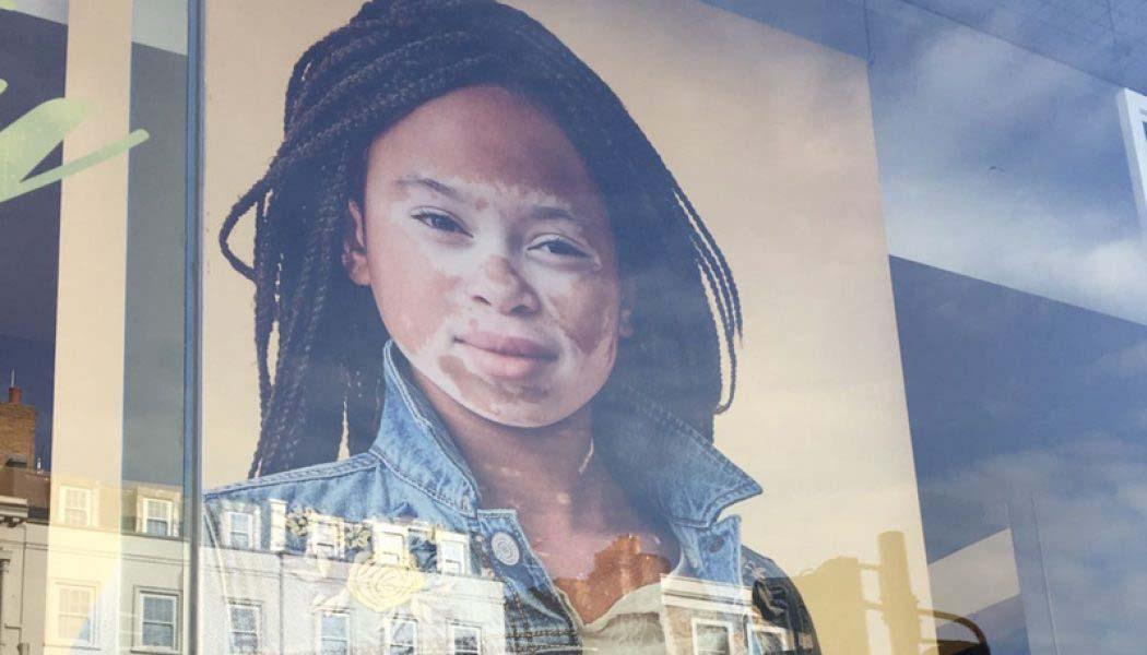 La niña con vitíligo, imagen de una reconocida firma americana