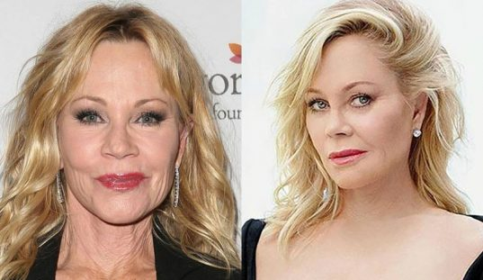 Botox, ¿sí o no?